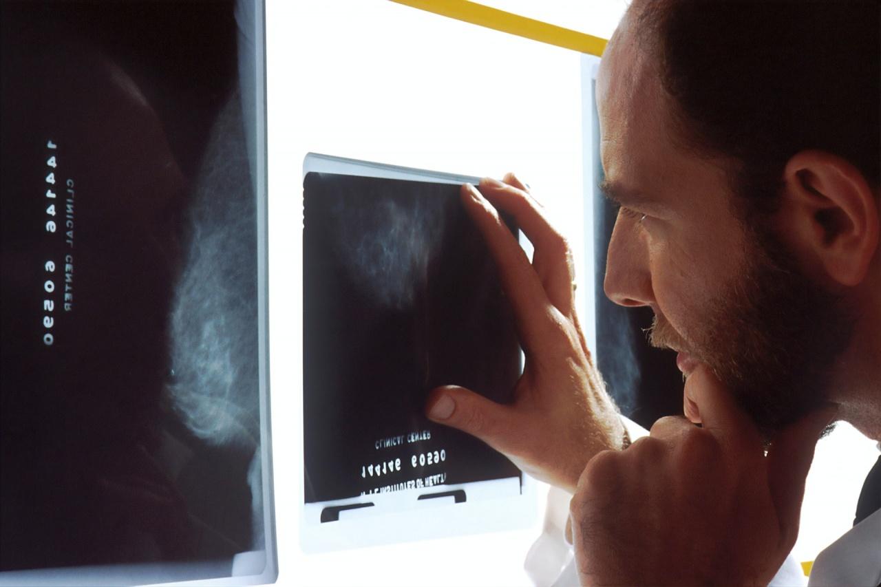 national cancer institute xray unsplash